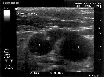 Pyometra ultrasound pictures